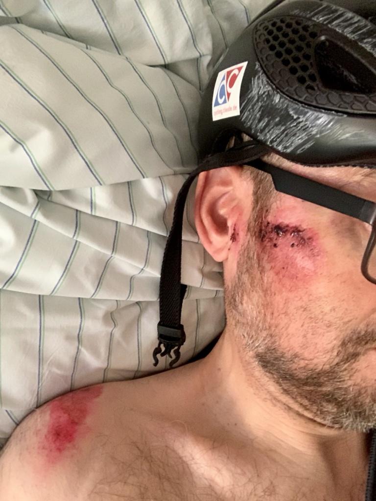 Unfall Fahrrad